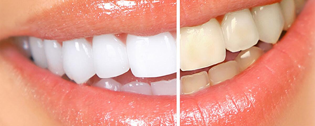 blanqueamento-dental-banner