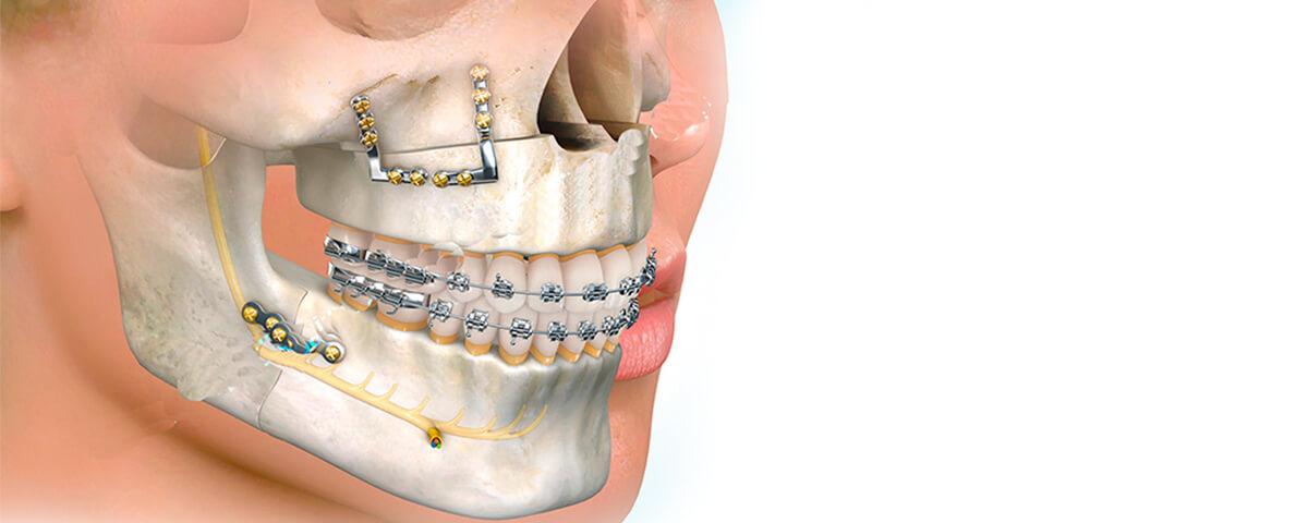 cirugia-bucal-maxilofacial-banner